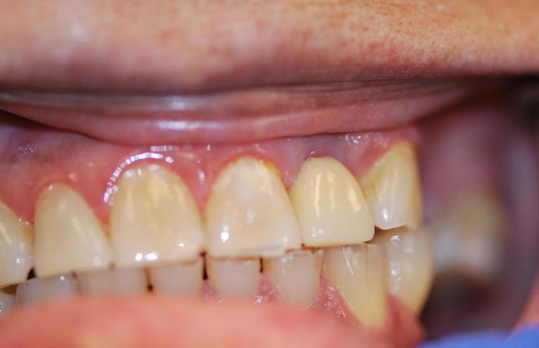 Dental-Implants-After-Image