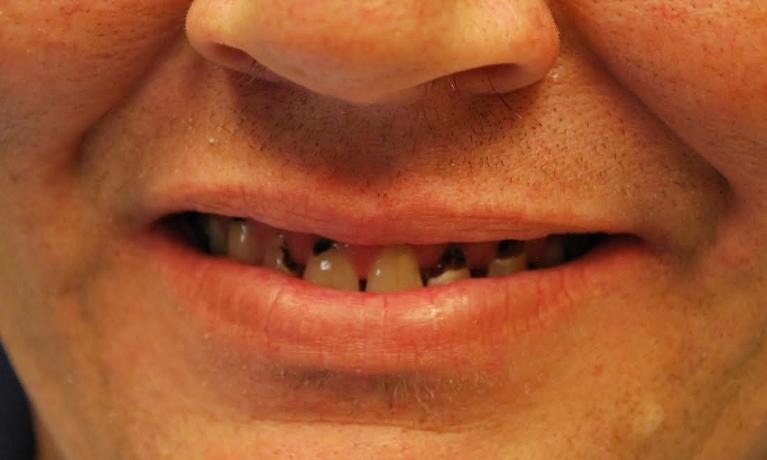 Dental-Crowns-Before-Image